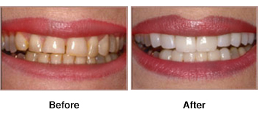 Veneers - Best Dentistry in Columbia