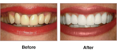 Whitening - Best Dentistry in Columbia